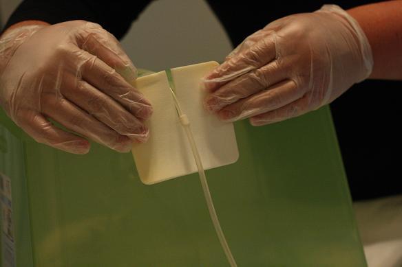 Pleurx Catheters How To Manage Your Pleurx Catheter